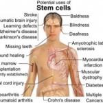 cellule staminali possibili strattamenti