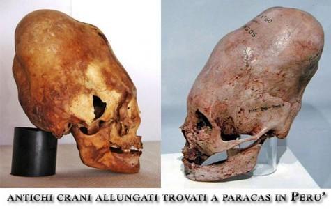 crani-allungati-trovati-in-peru