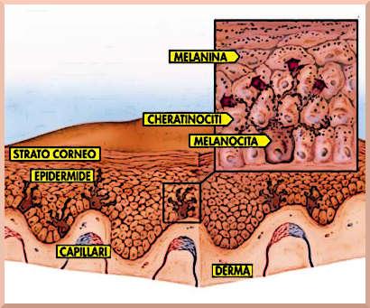tumori della pelle epidermite